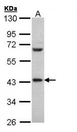 GTX108362 - PCBP2 / hnRNP-E2