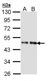 GTX108408 - Inhibin beta B chain (INHBB)