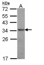 GTX108472 - Interleukin-24 / IL24