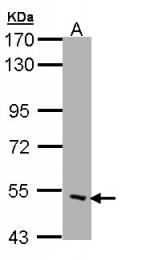 GTX108482 - Acetylcholine receptor delta subunit