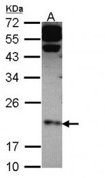 GTX108483 - Claudin-4 / CLDN4