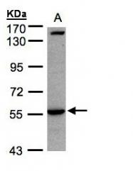 GTX108494 - CD121a / IL1R1