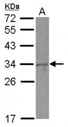 GTX108497 - KLRC1 / CD159a
