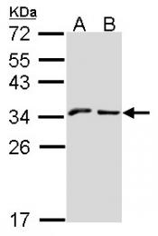 GTX108498 - KLRC1 / CD159a