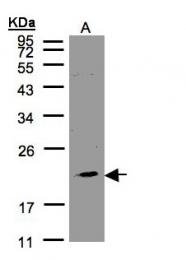 GTX108514 - KLRC4 / NKG2F