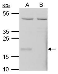 GTX108578 - Glutathione peroxidase 7 / GPX7