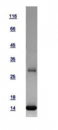 GTX108589-pro - Profilin 2 (PFN2)