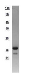 GTX108593-pro - CDKN2C / p18INK4c