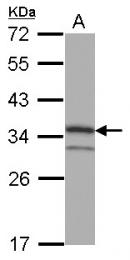 GTX108624 - Cyclin D1