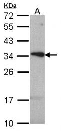 GTX108674 - Tetraspanin-1 (TSPAN1)