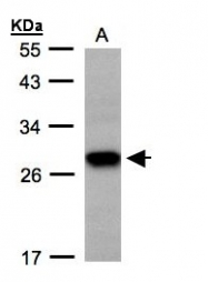 GTX108675 - Tetraspanin-1 (TSPAN1)