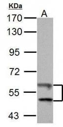 GTX108727 - Thioredoxin reductase 1 / TXNRD1