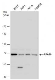 GTX108749 - RPA1