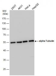 GTX108784 - alpha Tubulin / TUBA1B