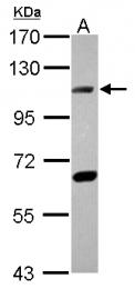 GTX108820 - DNA ligase 4