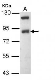 GTX108842 - ENAC beta / SCNN1B
