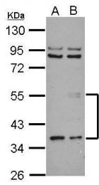 GTX108986 - Angiopoietin-5