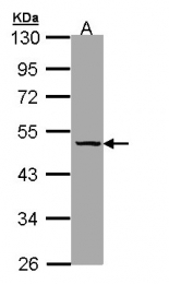 GTX109010 - Thyroxine-binding globulin /TBG