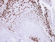 GTX109045 - Tumor protein p73 (TP73)