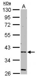 GTX109105 - AMPK gamma-2 chain / PRKAG2