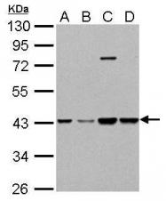 GTX109121 - Glutamine synthetase