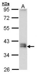 GTX109123 - Gamma-glutamyl hydrolase / GGH