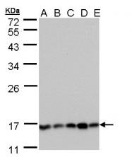GTX109127 - PPP3R1 / Calcineurin B