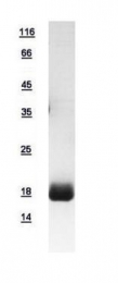 GTX109127-pro - PPP3R1 / Calcineurin B