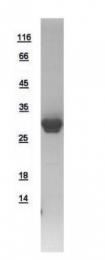 GTX109163-pro - Phosphoserine phosphatase