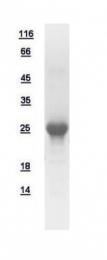 GTX109207-pro - Beta-crystallin A3