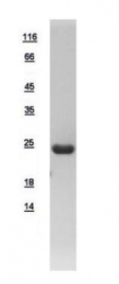 GTX109208-pro - Beta-crystallin S