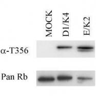 GTX10922 - Retinoblastoma-associated protein / RB1