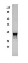 GTX109260-pro - Adrenomedullin (ADM)