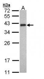 GTX109268 - Tropomyosin-2 (TPM2)