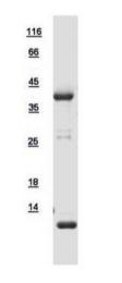 GTX109268-pro - Tropomyosin-2 (TPM2)