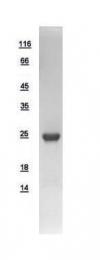 GTX109272-pro - Fast skeletal muscle Troponin I
