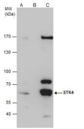 GTX109294 - STK4