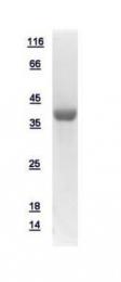 GTX109304-pro - Alcohol dehydrogenase 4 (ADH4)