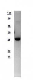 GTX109306-pro - Deoxyribonuclease-1