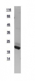 GTX109314-pro - AP1 complex subunit sigma-2