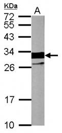 GTX109331 - Cardiac Troponin I