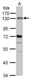 GTX109450 - CD334 / FGFR4