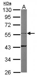GTX109489 - Cytokeratin 8