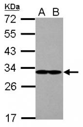 GTX109525 - EIF2B1 / EIF2BA