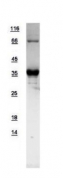 GTX109544-pro - Syntaxin 11 / STX11