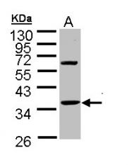 GTX109585 - Skeletal muscle Troponin T