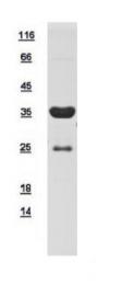 GTX109585-pro - Skeletal muscle Troponin T