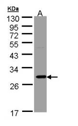 GTX109591 - Ketohexokinase