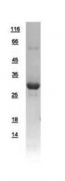 GTX109591-pro - Ketohexokinase