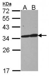 GTX109592 - Tropomyosin-3 (TPM3)